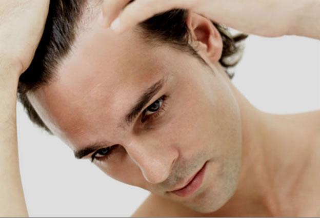 queda-de-cabelo_tratamento_dra-patricia-frico1