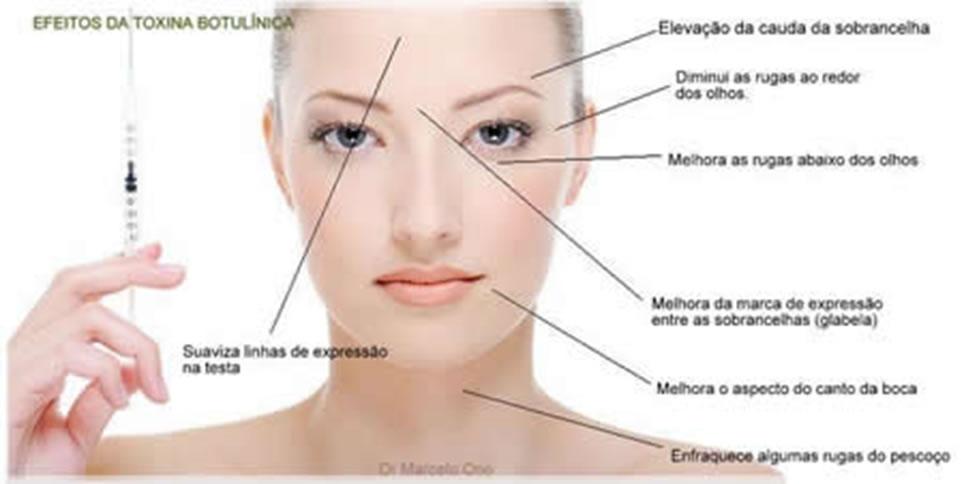 rejuvenecimento-facial-global_patricia-frico10