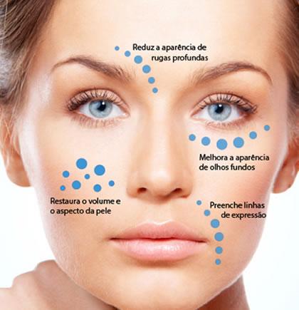 rejuvenecimento-facial-global_patricia-frico8